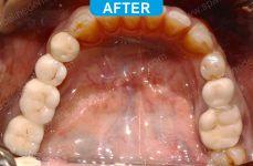 Implants - 1-3
