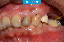 Implants - 5-1