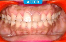 Orthodontics -4-5