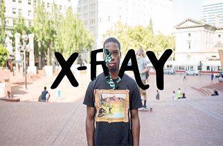 X-Ray Web Series Part II