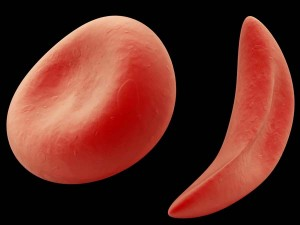 """""""Sickle"""" red blood cells are curved like the farm tool of the same name."""