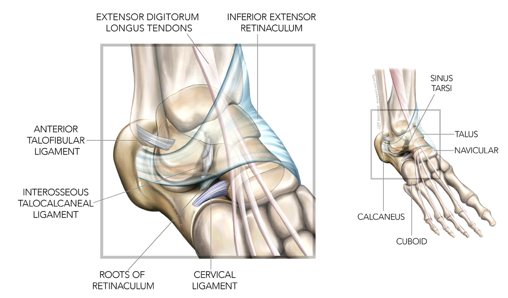 Sinus tarsi syndrome a possible source of lateral ankle pain