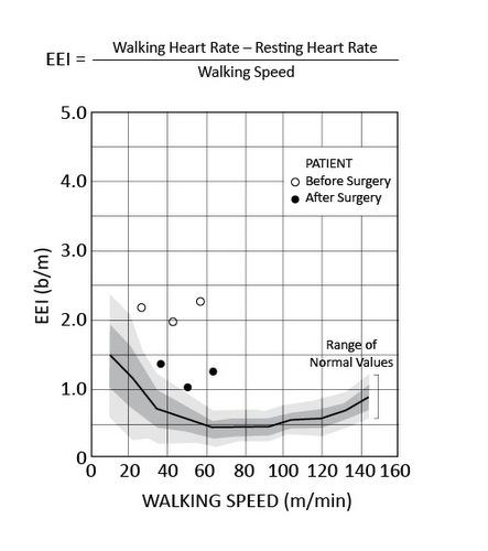 Gait Analysis - Stanford Children\u0027s Health