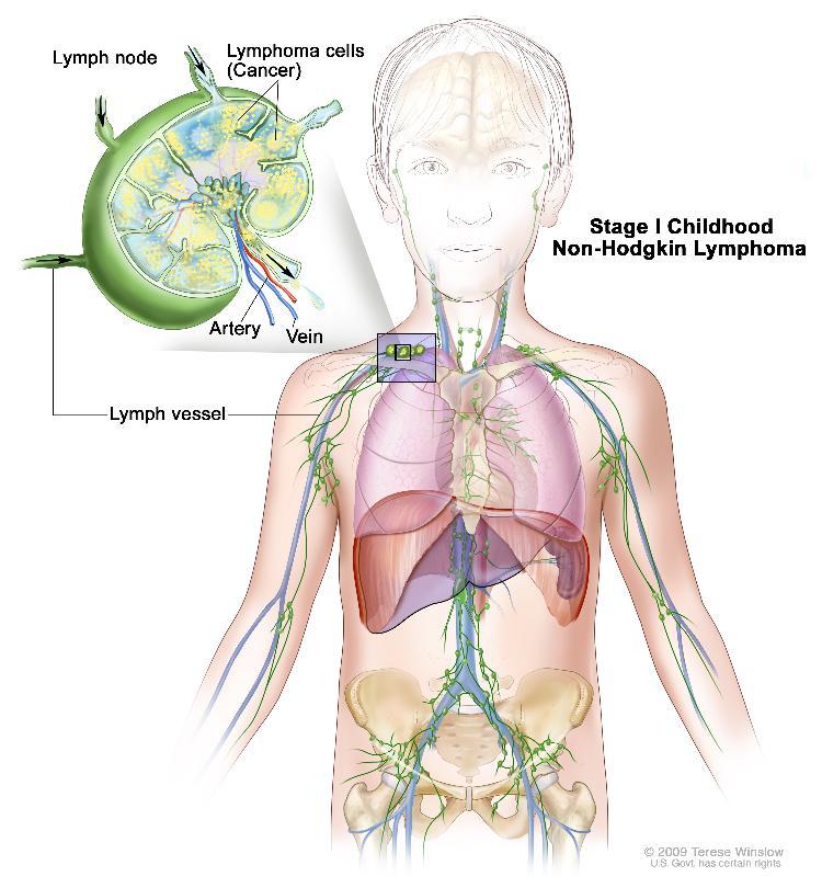 Childhood Non-Hodgkin Lymphoma Treatment (PDQ®)