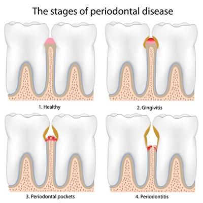 Periodontal Disease - Gingivitis - Gum Disease Treatment Eldersburg