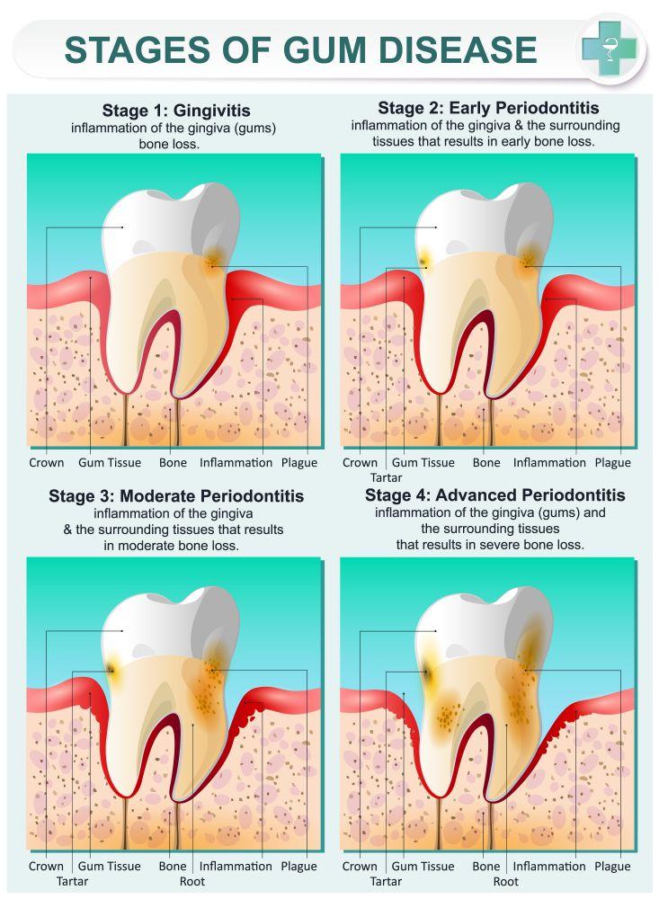 Gum infection Gingivitis and Periodontitis STDGOV Blog