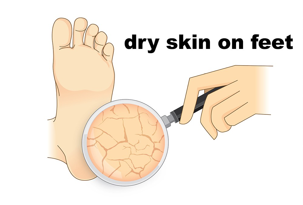 Dry skin on feet causes, symptoms, home remedies  treatment, pictures