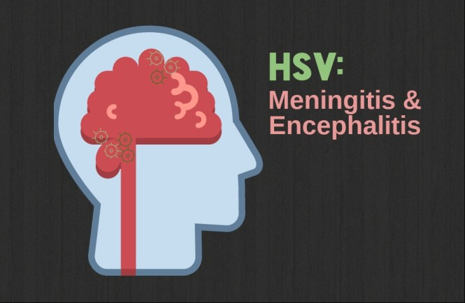 How Does The Herpes Virus Cause Encephalitis? 3