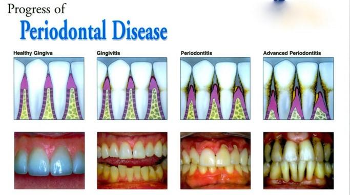 The Progression of Periodontal Disease - McCreight Progressive Dentistry