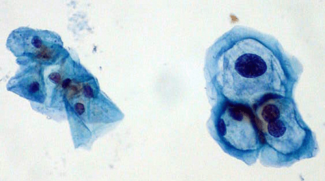 Koilocyte HPV PAP Smear