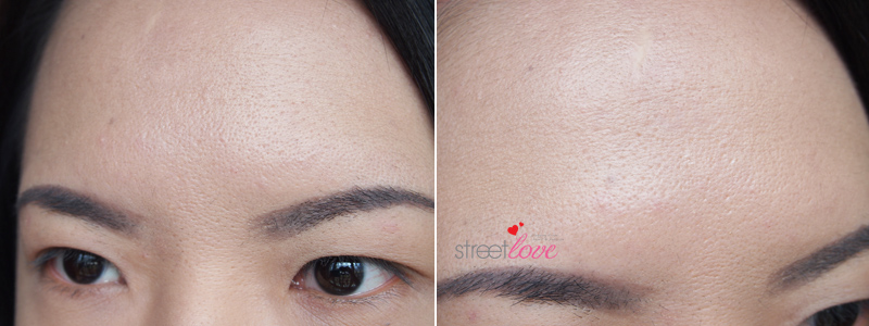 Renee Clinic Botox 15