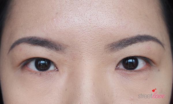Renee Clinic Botox 16
