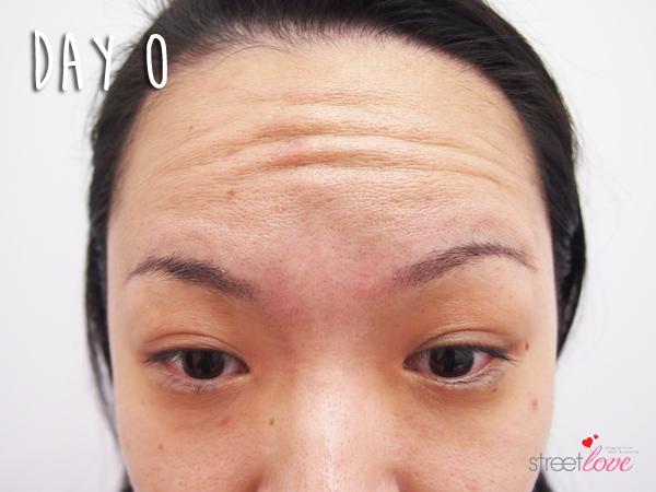 Renee Clinic Botox 7