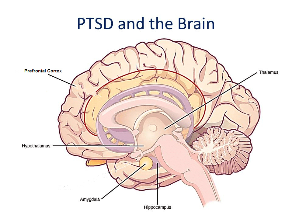 PTSD AND THE BRAIN - Strength of a Warrior
