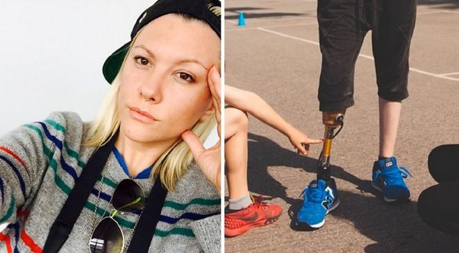 عارضة أزياء تفقد قدمها بسبب فوطة صحية + صورة