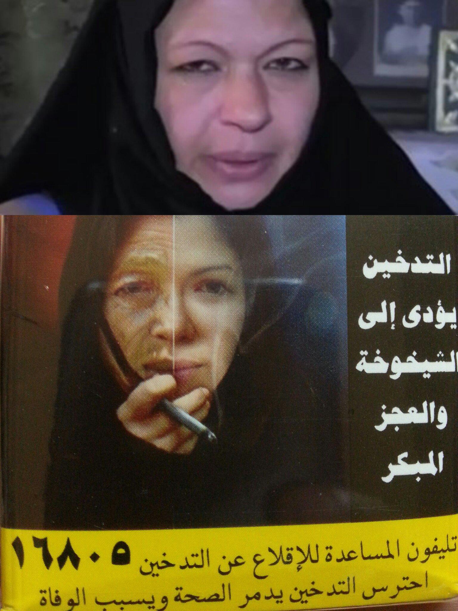 استغلوا مرضها بالسرطان ليضعوا صورتها على علب السجائر!