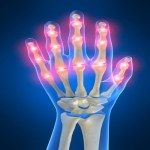Painful hand joints