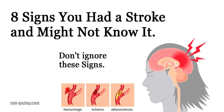 Резултат со слика за 8 signs you had a stroke and might not know it. Don't ignore these signs