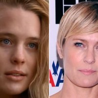 Robin Wright Plastic Surgery Before After, Breast Implants