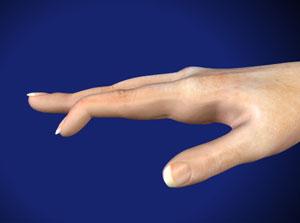 Mallet Finger Baseball Finger Montgomery Orthopaedics