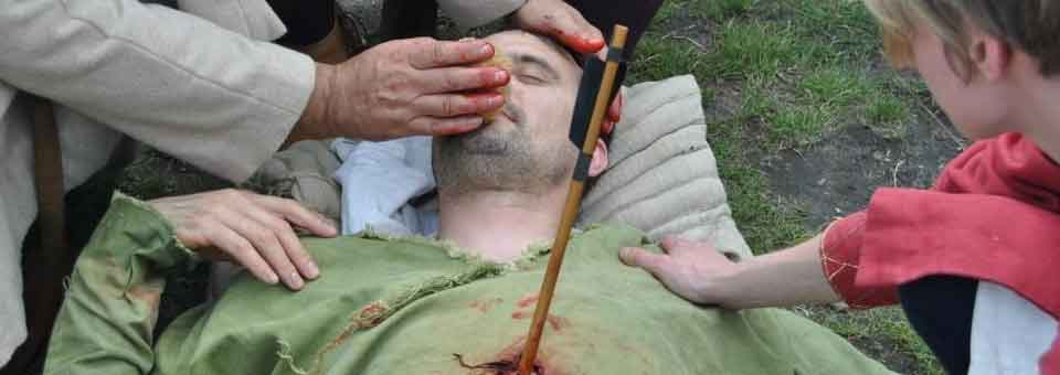 The Medieval Wounded Man Common wound locations and treatment - medical charts