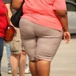 grasa obesidad