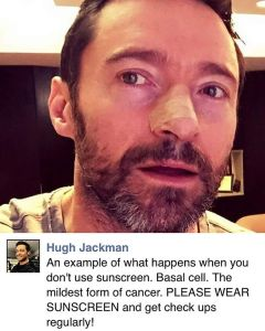 Listen to Wolverine who just had a basal cell carcinomahellip
