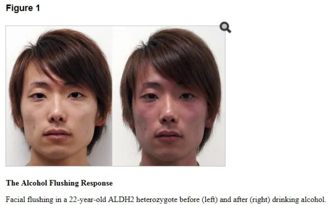 Facial Flushing