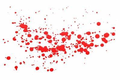Hd Dexter Wallpaper Blood Splatters Texture Background Images Amp Pictures