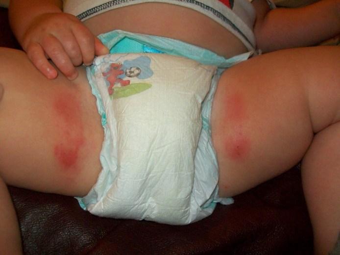 علاج تسلخات الأطفال