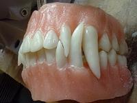 monster_teeth.jpg