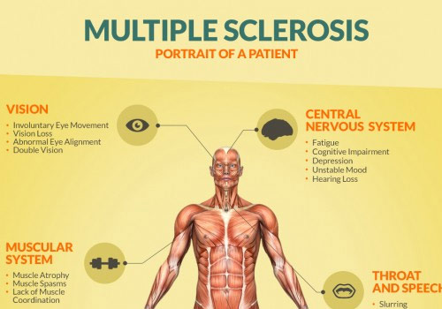 multiple+sclerosis
