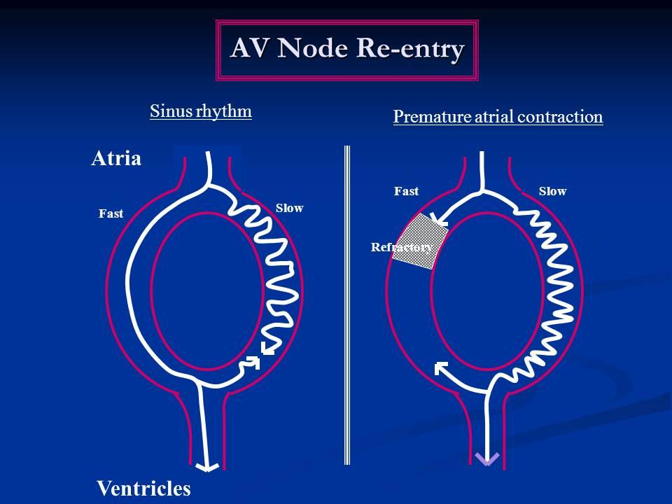AV nodal reentrant tachycardia Diagnosis and Treatment - The