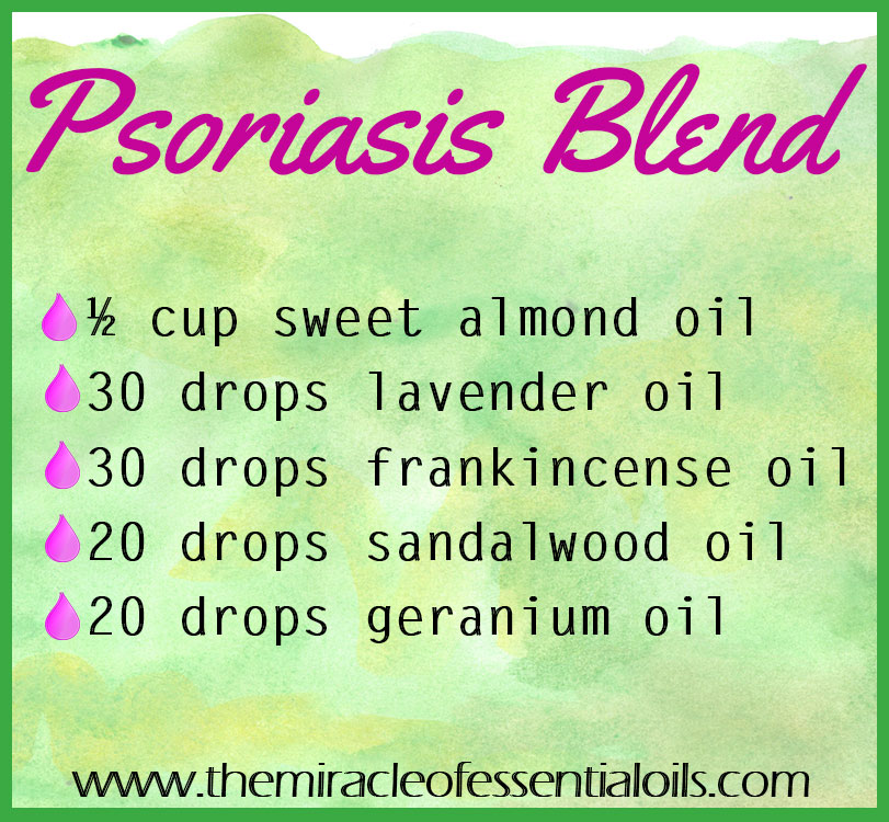 DIY Essential Oil Blend for Psoriasis - The Miracle of Essential Oils - essential oil for psoriasis
