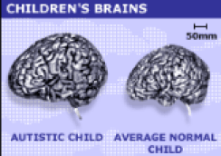 "<img src=""http://i0.wp.com/www.thenextrex.com/wp-content/uploads/2015/03/normal-brain-vs-autistic-child-brain.png?resize=244%2C172"" alt=""normal brain vs autistic child brain"">"