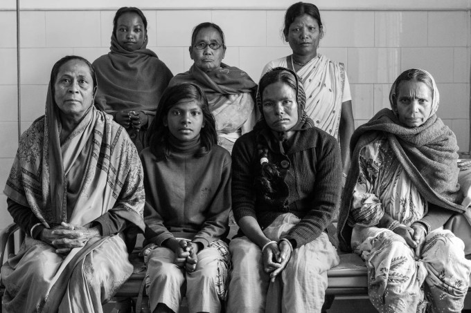 The women's ward at a leprosy hospital in West Bengal, India
