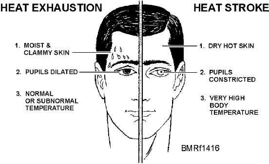 treatment diagram