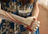 grace-mandeville-bionic-arm-close