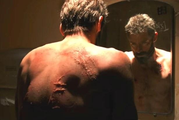 Logan\u0027 What\u0027s Wrong With Wolverine\u0027s Incredible Healing Powers?