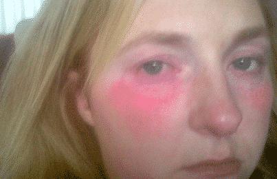 Weird Allergies