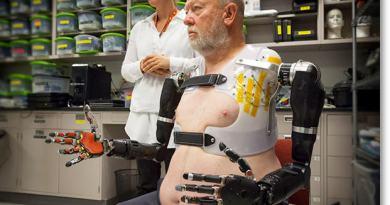 bionicarm01