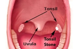 What Those Nasty White Chunks That Sometimes Come From Your Throat Are