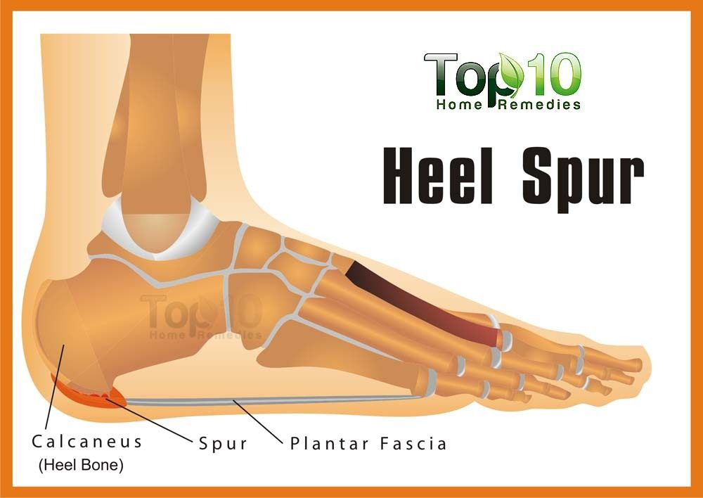 Home Remedies For Heel Spurs Top 10 Home Remedies