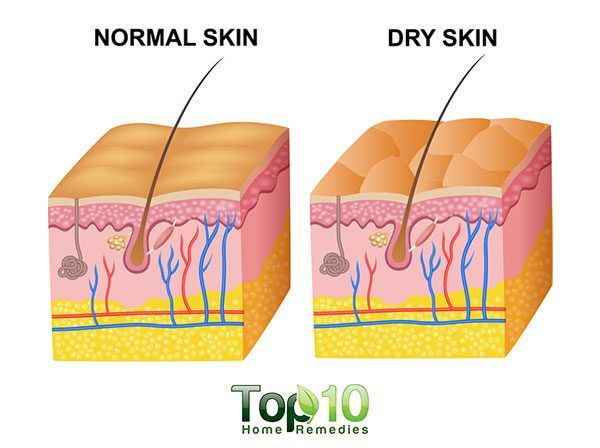 Home Remedies to Fight Dry Skin This Winter Blog Health WAU