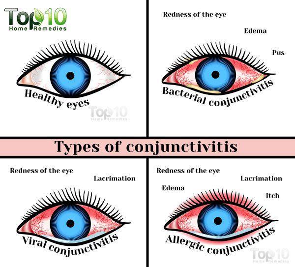 Pink Eye Diagram Wiring Diagram