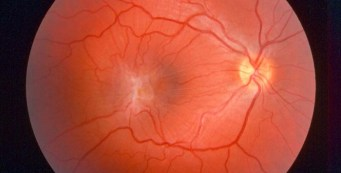 Epiretinal Membrane – Causes, Symptoms and Treatment