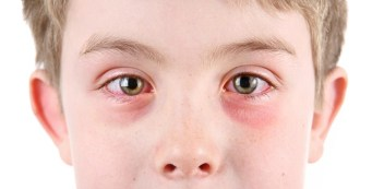 Allergic Conjunctivitis 101: Symptoms, Prevention, Treatment