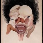 Ectopic pregnancy, 2004