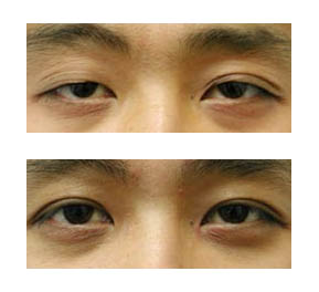 Ph nom ne au japon se faire d brider les yeux blog - Coup de soleil sur le visage que faire ...