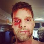 Ricky Martin Posts Shocking Photo to Instagram